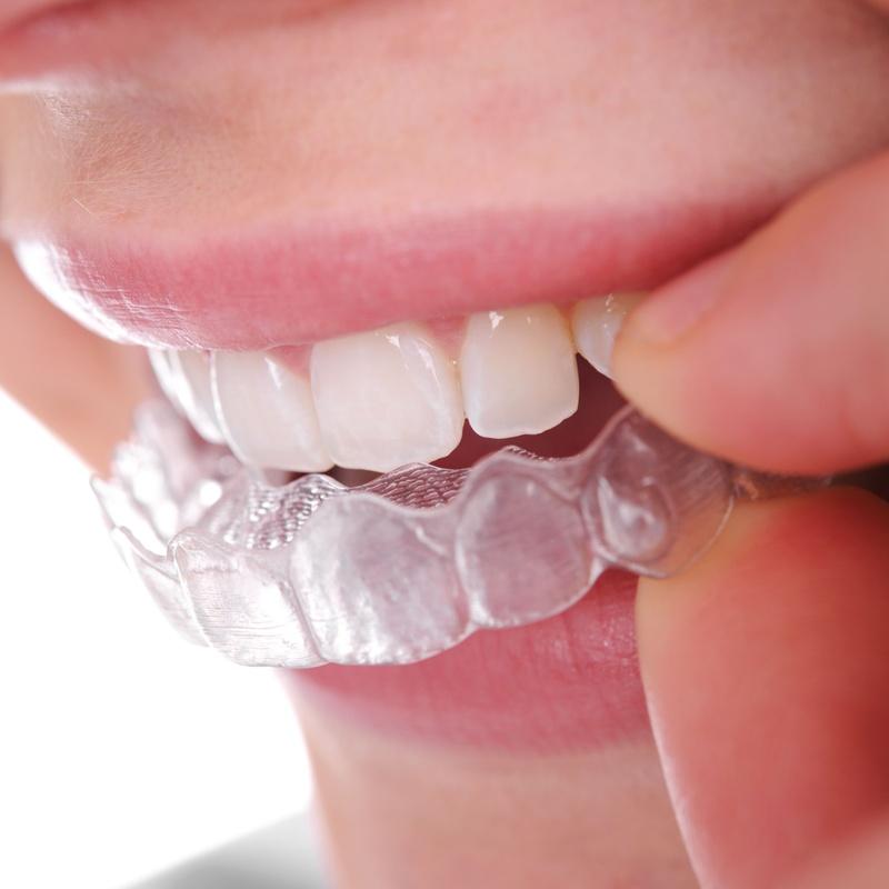Ortodoncia invisible: Tratamientos dentales de Clínica Dental Álvaro Gómez