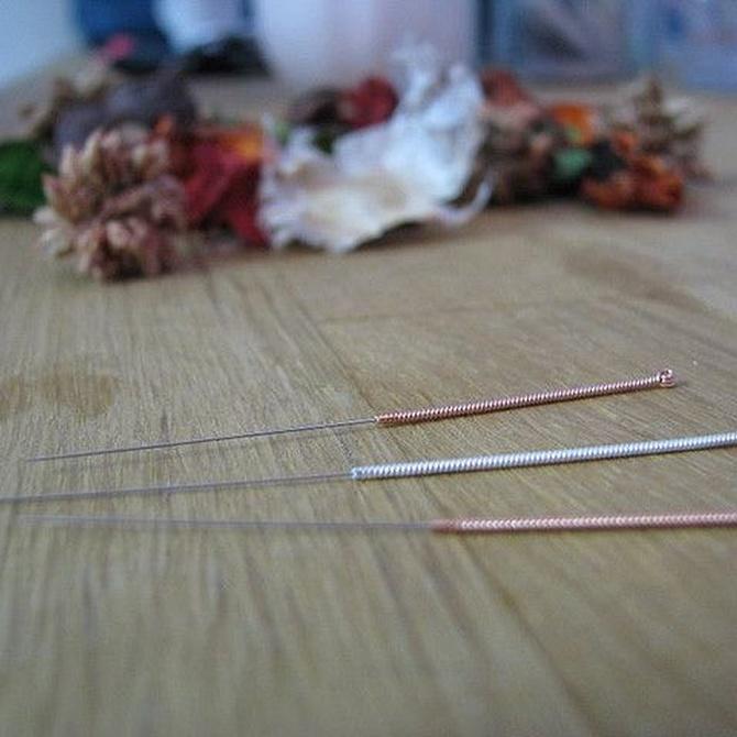 ¿Cuándo está indicado un tratamiento de acupuntura?