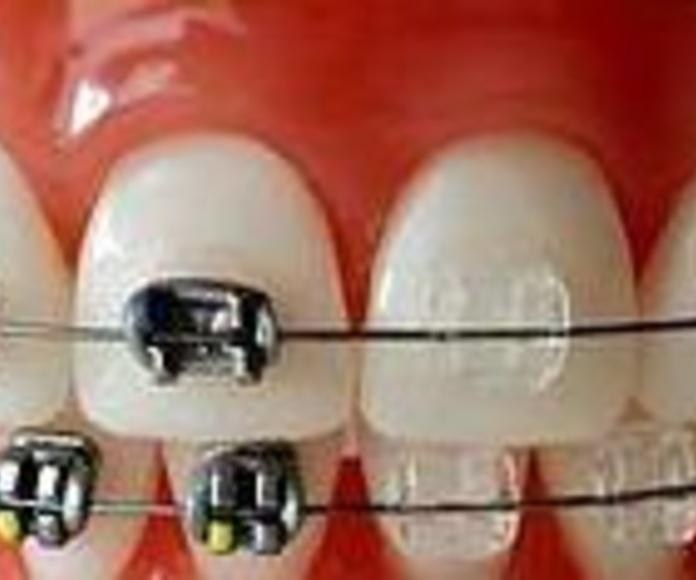 Ortodoncia: Tratamientos de Clínica Dental Tárrega - Guissona