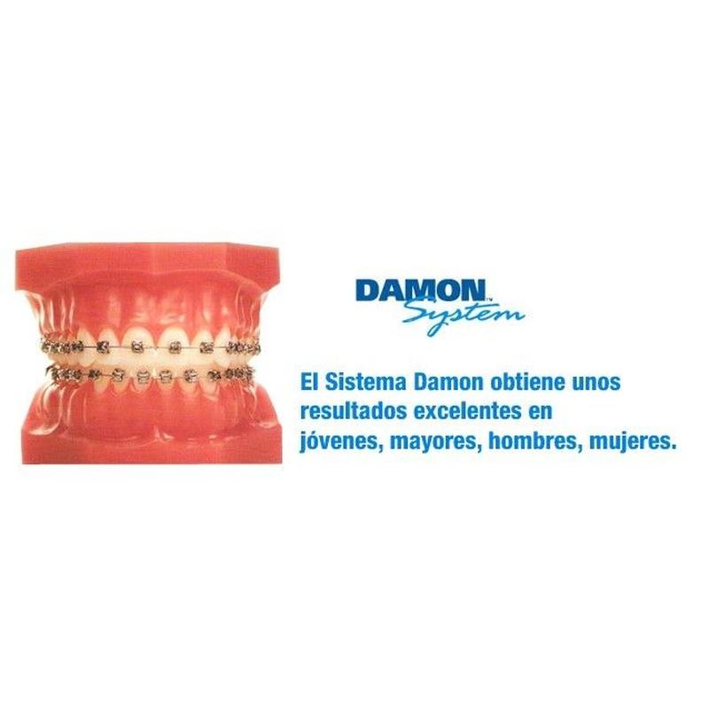 Damon: Especialidades  de Clínica de Ortodoncia Dr. Mariano Núñez