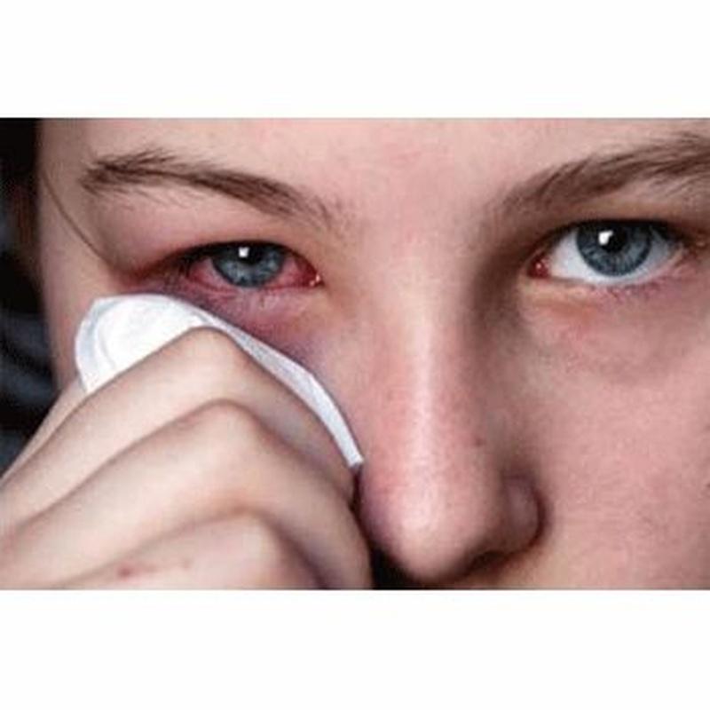 Blefaritis - Conjuntivitis alérgica: Catálogo de Centro Médico  Oftalmológico Milenium