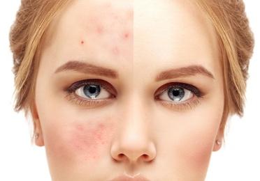 Tratamiento de acné juvenil natural