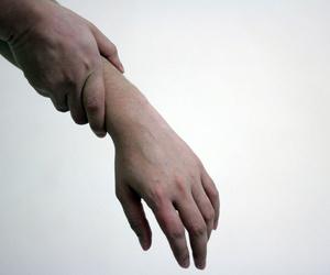 Tratamiento del dolor crónico en Arganzuela