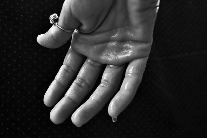 Hiperhidrosis: Servicios de Clínica Vicario