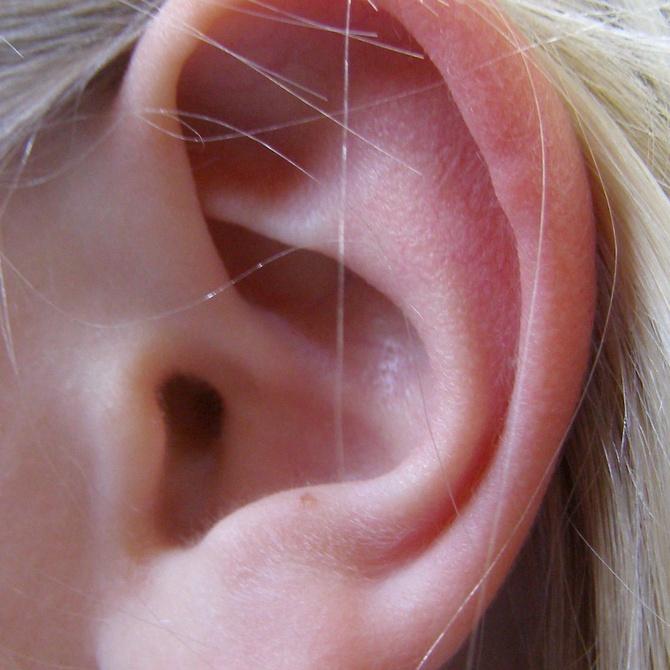 Los beneficios de la otoplastia