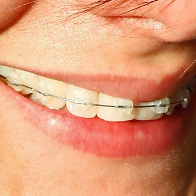 La edad para colocarse la ortodoncia
