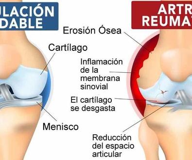Eficacia de tratamiento biológico para la artritis reumatoide