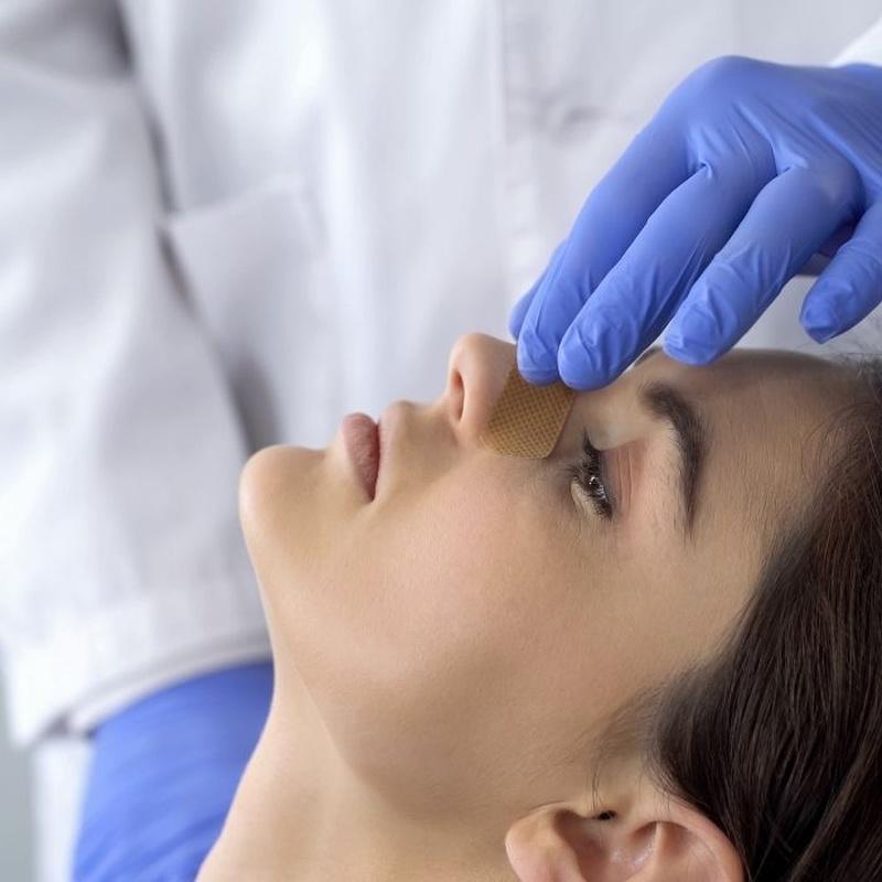 Rinomodelación sin cirugía: Servicios de Dr. José Antonio Rodríguez Esteban