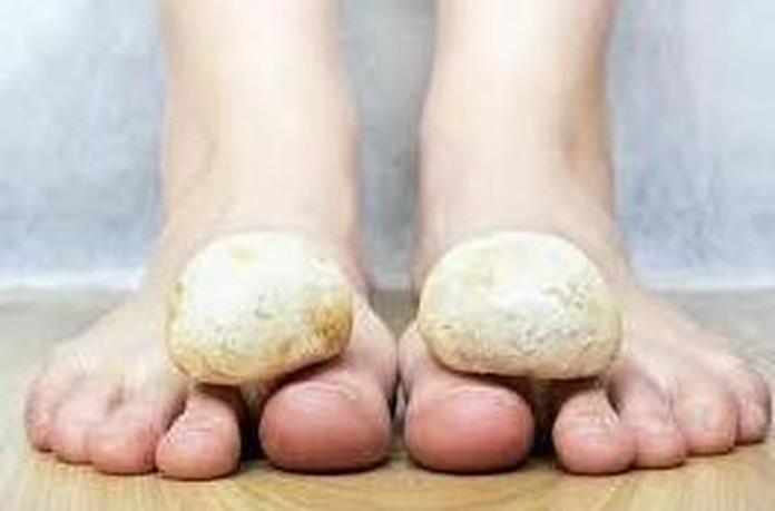 diagnostico  de hongos en las uñas , o planta del pie