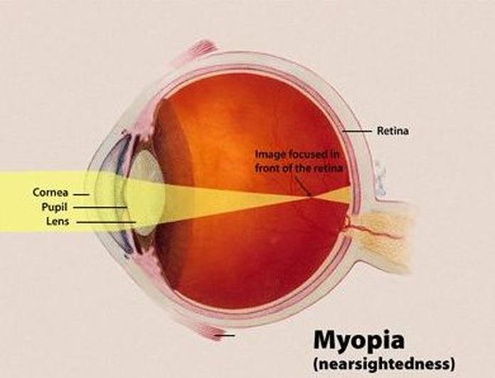 Miopía: Tratamientos de Enrique Rodríguez Rocandio