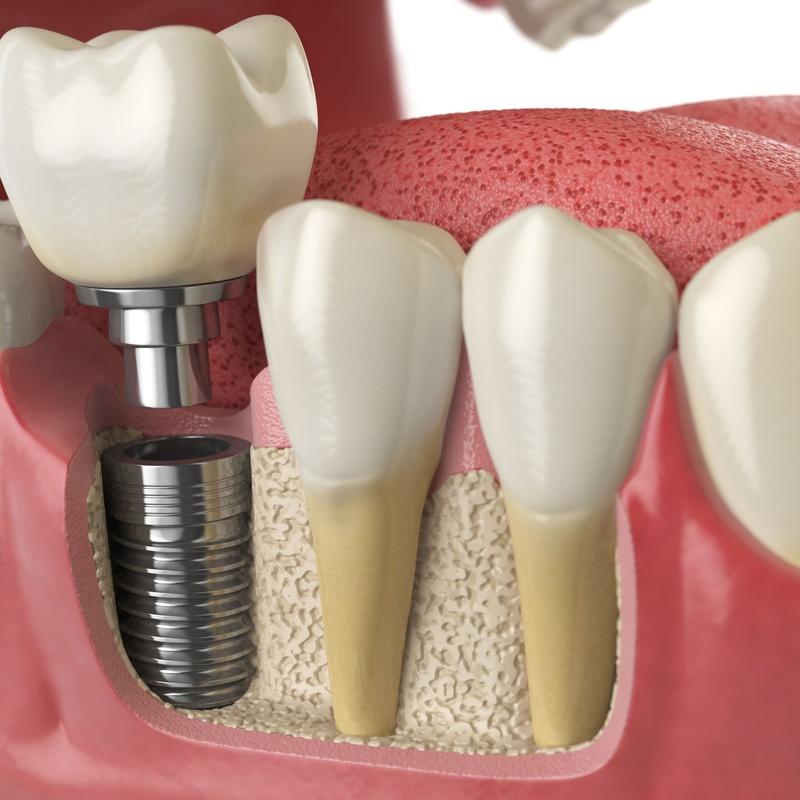 Especialistas en prótesis fija: Servicios de Humanes Dental, S.L.