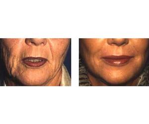 Terapia celular avanzada: Lipofilling