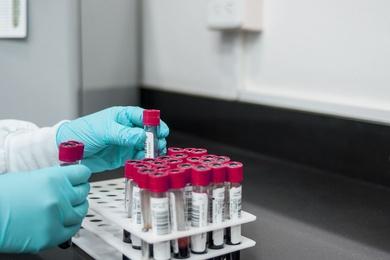 Transporte de muestras biológicas