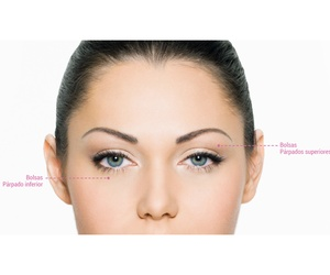 Blefaroplastia simple