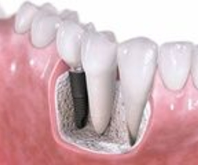 Implantes : Especialidades  de Centro Dental Unamuno