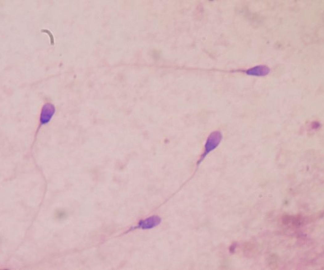 Principales causas de la infertilidad masculina