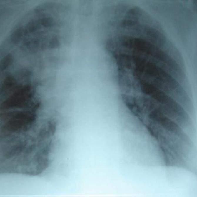 Cuáles son las pruebas de diagnóstico por imagen más frecuentes