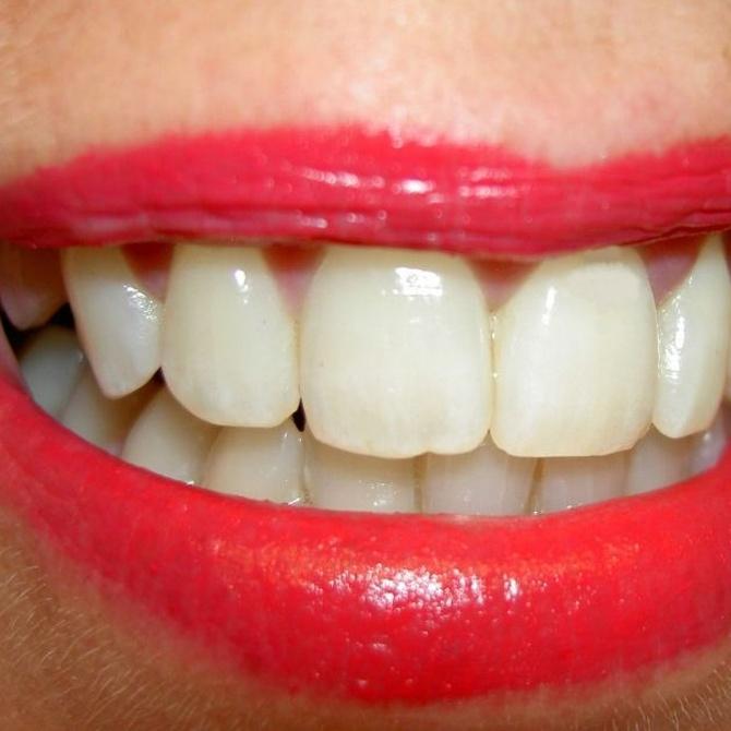 ¿Sabes por qué salen manchas blancas en los dientes?