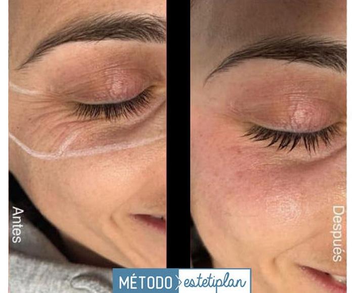 HiFU Facial: Tratamientos Personalizados de Belleza+Estética Tacoronte