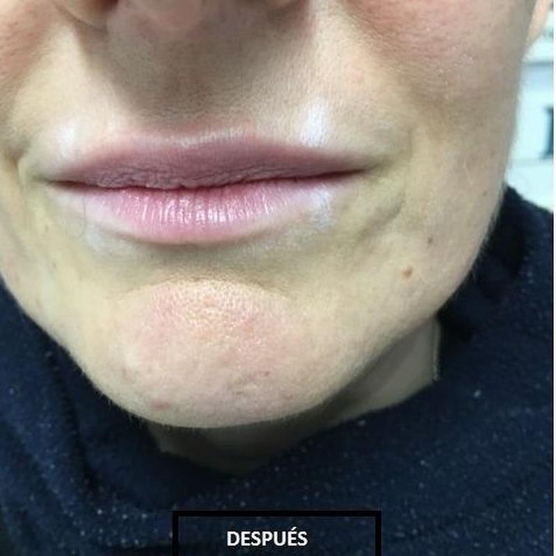 Relleno de Ácido Hialurónico: Dermatología y Dermoestética de Dermatología Socorro Fierro