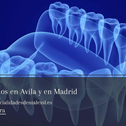 Clínica dental en Ávila | Clínica Especialidades Dentales
