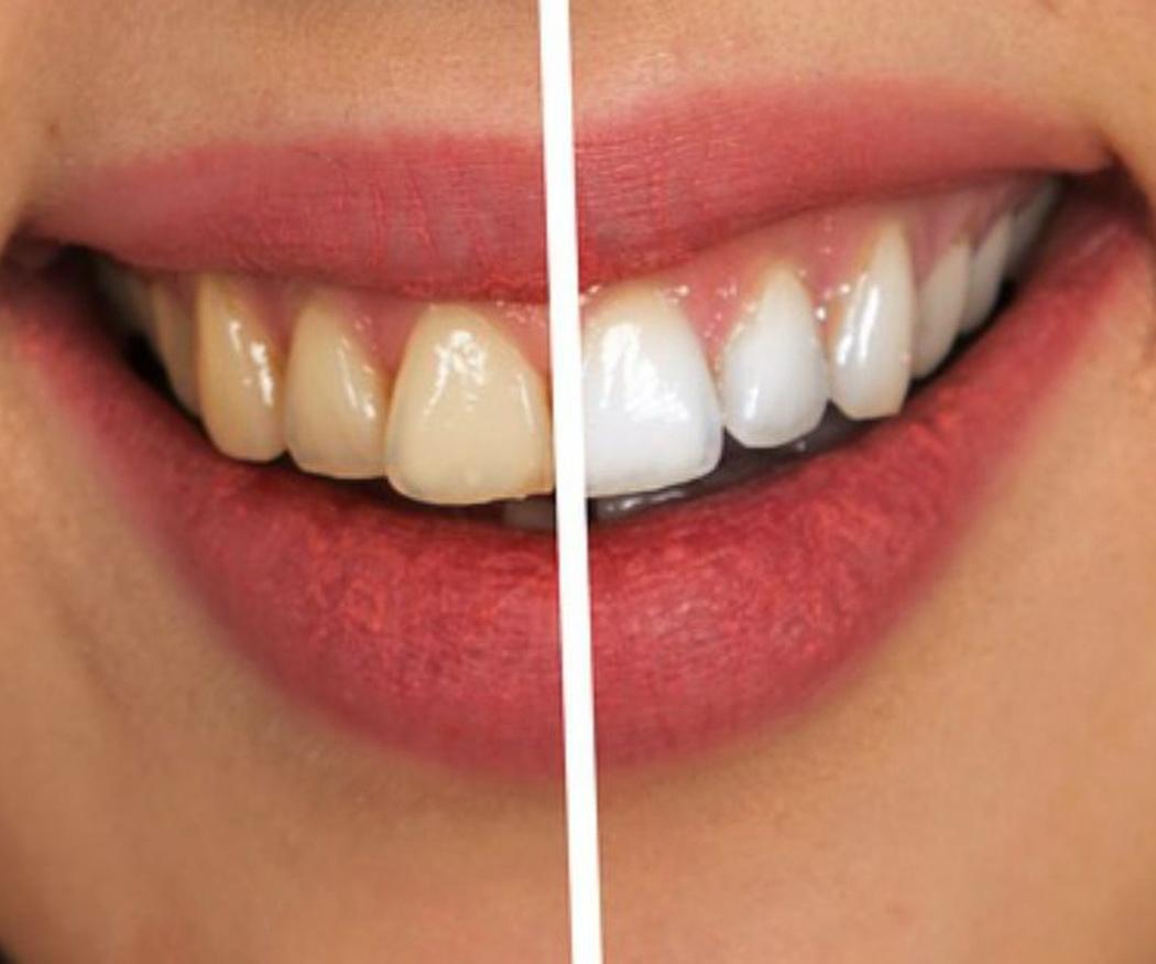 Devuelve el color a tus dientes