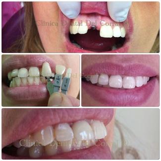 implantes dentales como solución estética.