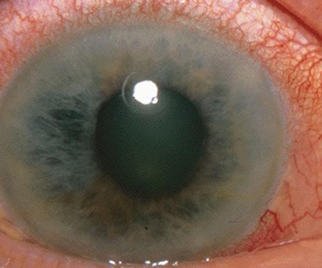 Glaucoma: qué hacer para prevenirlo
