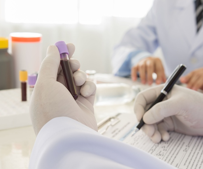 Análisis bioquímico: Servicios de Laboratorio Delta