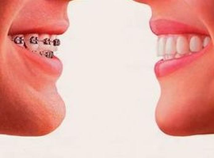 Tipos de ortodoncia y aparotología: Servicios de Clínica Dental El Carmen