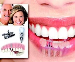 Implantes dentales, cómo son y cómo se colocan