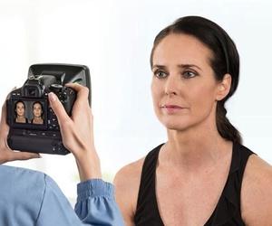 Diagnóstico facial con la cámara Vectra H1 (Canfield)