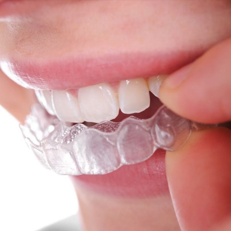 Otros tratamientos: Tratamientos de Clínica Dental Quart