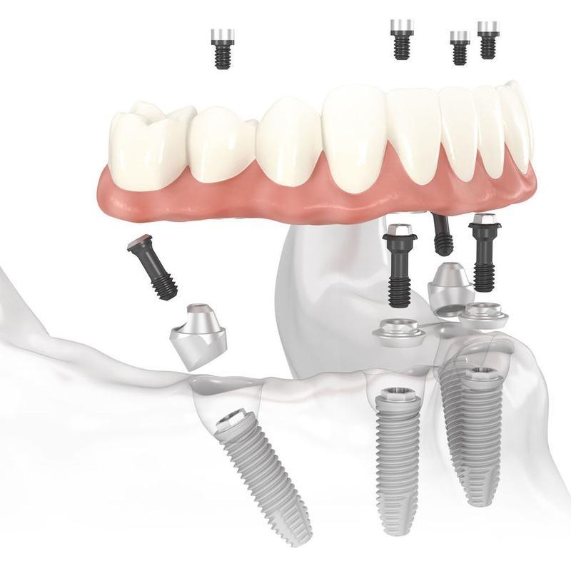 All-on-4 TM: Tratamientos de Centro Dental Innova
