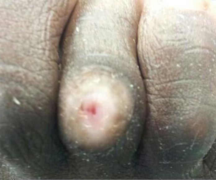 Dedos en garra: Servicios de Clinimar Clínica Podológica y Estética. Depilación