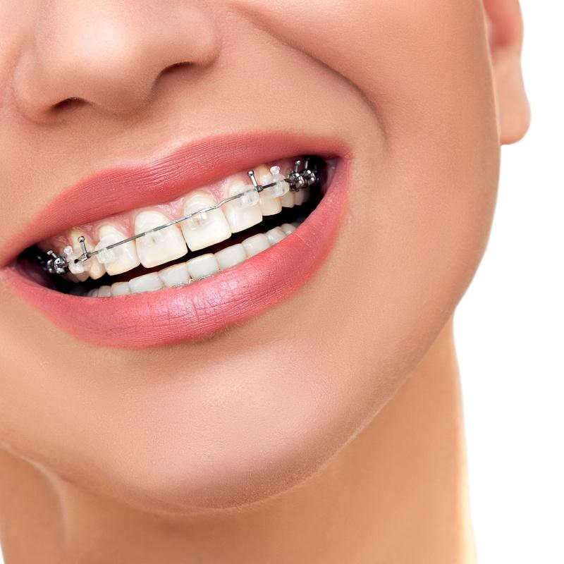 Ortodoncia: Catálogo de Centro de Salud Dental FamilDent