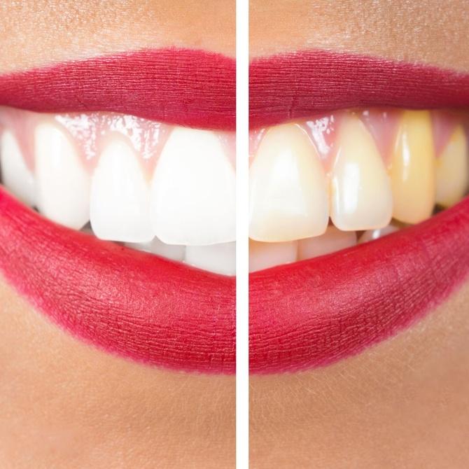 Consejos que debes seguir para un correcto blanqueamiento dental