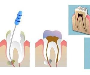 Todos los productos y servicios de Clínica dental con todo tipo de tratamientos odontológicos: Clínica Dental Beyer