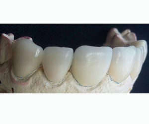 Protésicos dentales,