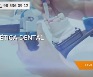Implante dental en Gijón | Clínica Dental del Campo