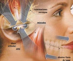 ATM ( Bruxismo ), tratamiento fisioterápico en Alcorcón
