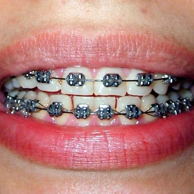 La ortodoncia para adultos