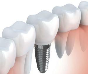 Implantología y prótesis sobre implantes