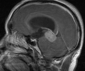 Cirugía de los nervios perifericos: Especialidades y publicaciones de Doctor Villarejo