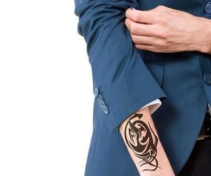 Eliminar tatuajes con Laser Avant