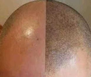 Curso de Tricopigmentación o Micropigmentación Capilar