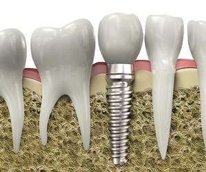 Prótesis e implantes