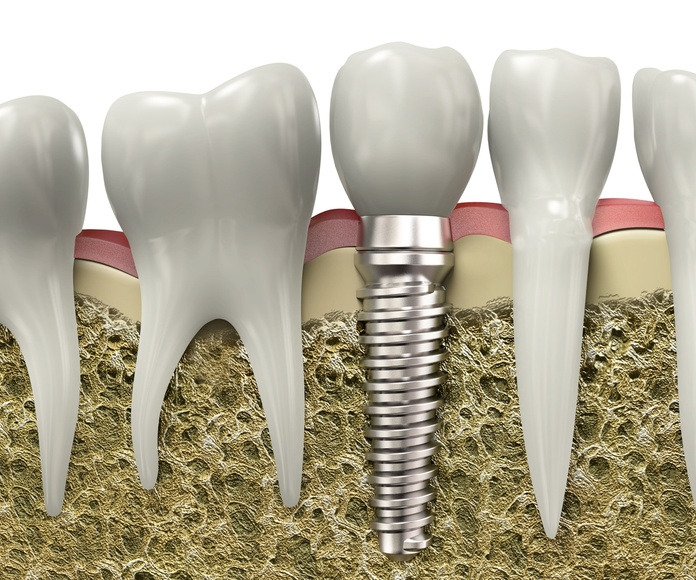 Implantes: Tratamientos de Clínica Dental Sur