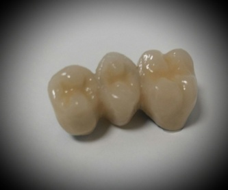 Prótesis removible semiflexible: Laboratorio Dental de Laboratorio de Prótesis Dental