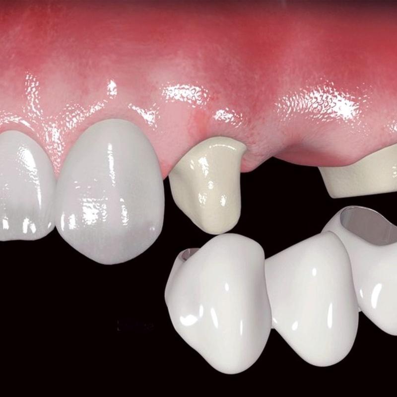 Prótesis fijas de porcelana: Catálogo de Centro de Salud Dental FamilDent